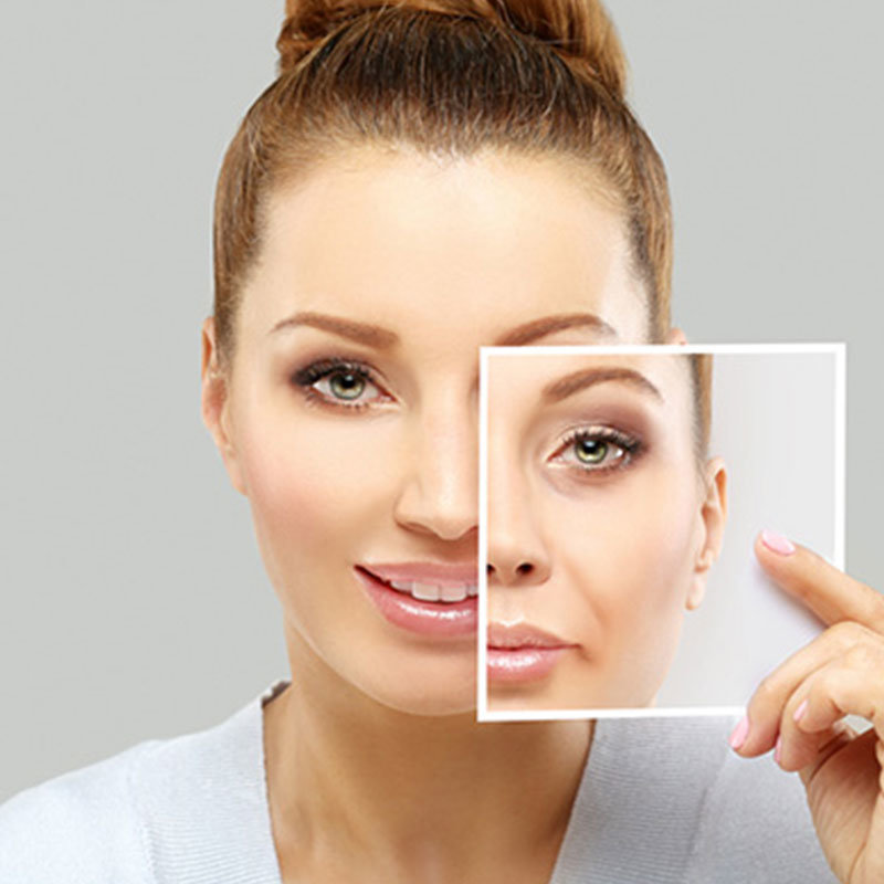 Anti Aging: Best Anti-Aging Treatment For Face