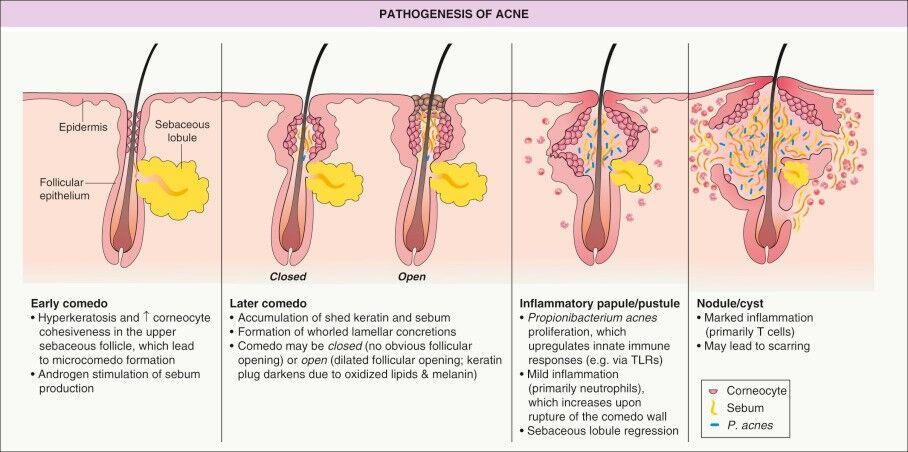 Acne Treatment In Mumbai Best Dermatologist Cystic Acne Specialist